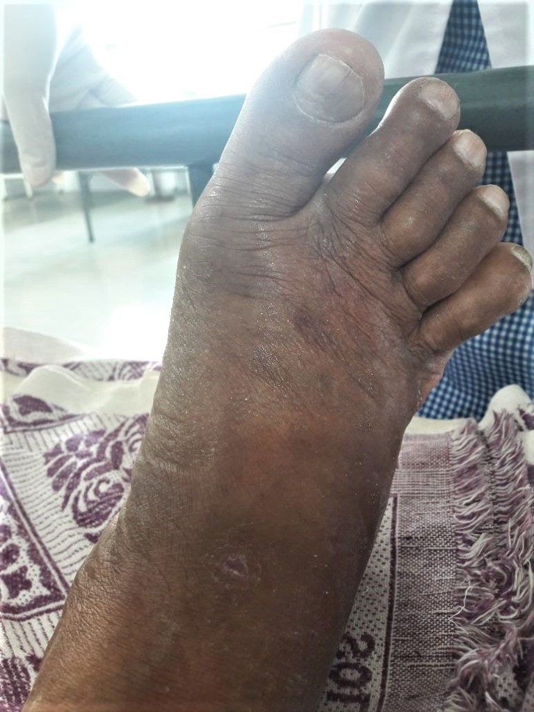 Swollen foot due to saw scaled viper bite